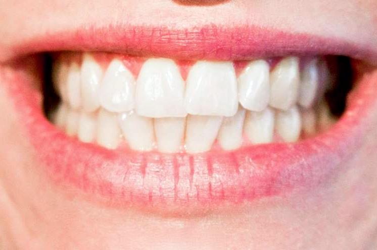 Detectar el bruxismo a tiempo para evitar problemas en las articulaciones mandibulares