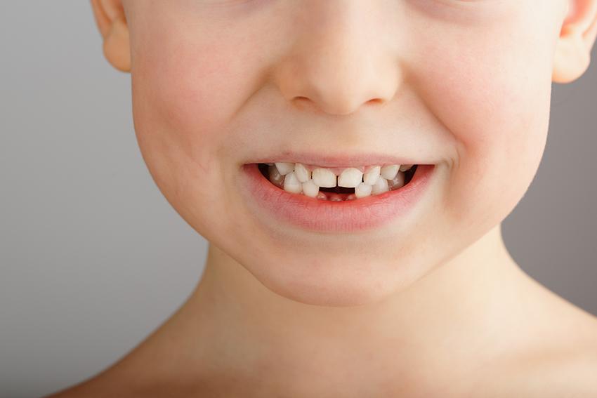 Consulta con tu dentista para niños si la erupcion dental está siendo correcta - Clinica dental bucoral