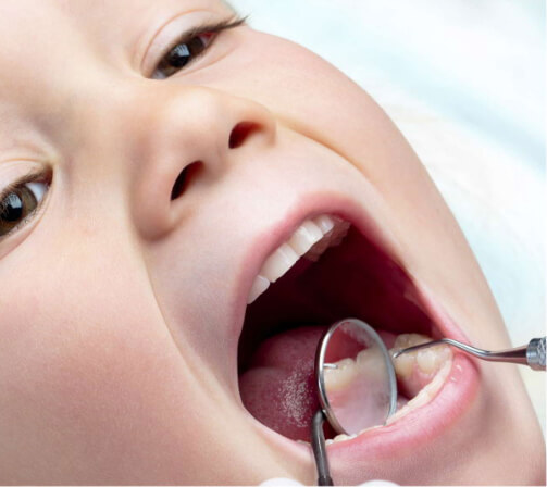 ¿Estás buscando un dentista infantil? Somos expertos en Odontopediatría | Clínica dental Bucoral Antequera