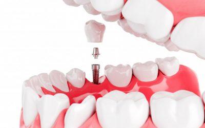 ¿Cómo hacer una correcta limpieza de los implantes y prótesis dentales?