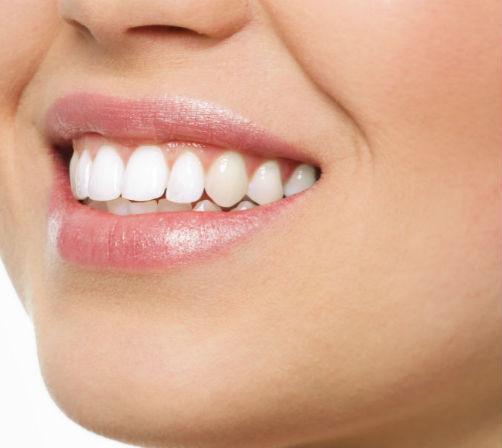 Dentista en antequera especializado en carillas dentales - Clínica Dental Bucoral