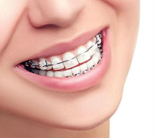 Dentista en Antequera especializada en ortodoncias - Clínica Dental Bucoral