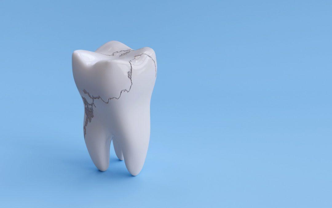Se me ha roto un diente, ¿cómo lo puedo arreglar?