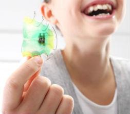 Ortodoncia para niños en la clínica dental bucoral, expertos en odontopediatria