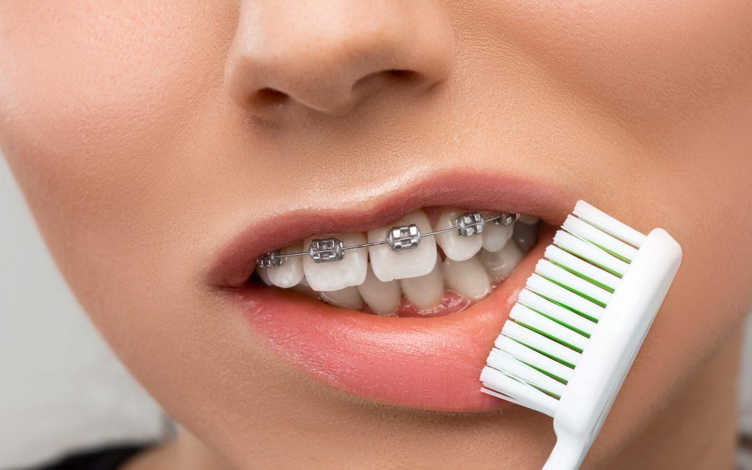 ¿Cómo hacer una correcta limpieza dental cuando se tienen 'brackets'?