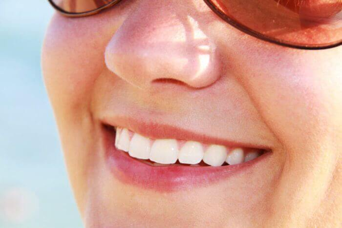 blanqueamiento-dental-bucoral-antequera-mollina-dentista-2