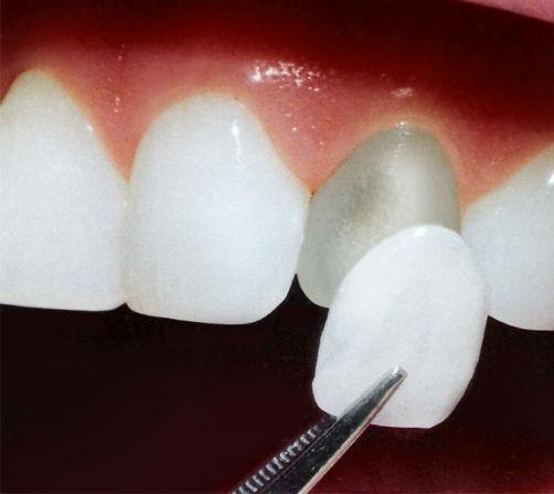 carillas-dentales-lumineers-bucoral-antequera-mollina-1