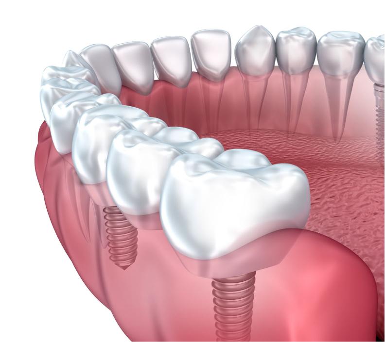 dentista-implantes-bucoral-antequera-mollina-2