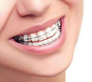 ortodoncia-bucoral-antequera-mollina-dentista-2