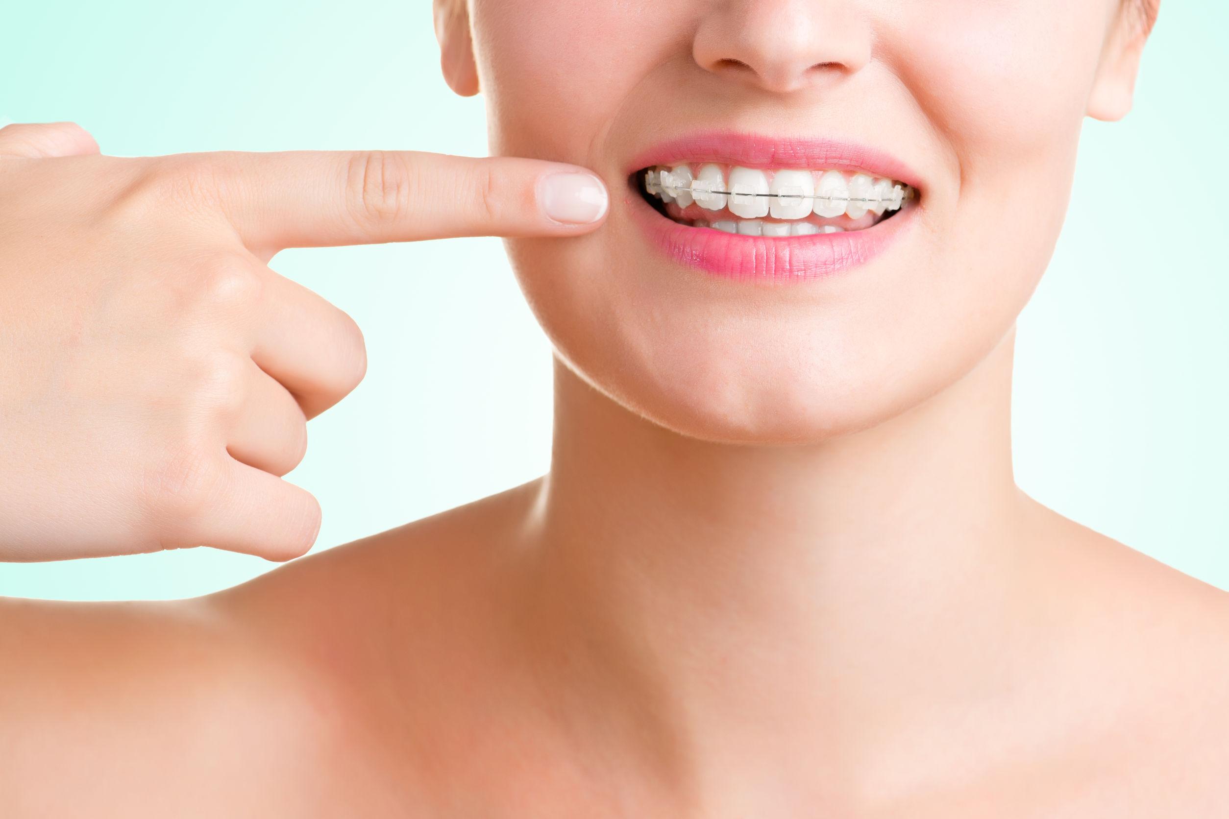 ortodoncia-bucoral-antequera-mollina-dentista-4