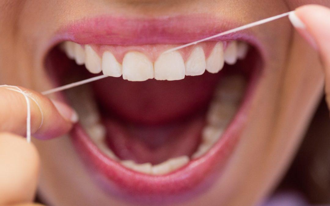 Los peligros de la acumulación del sarro en los dientes y las encías