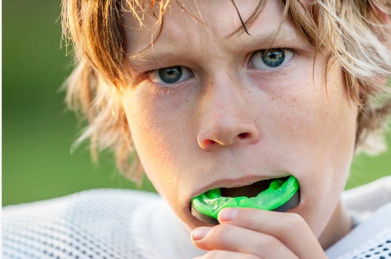 Protectores bucales: evitar traumatismos dentales practicando deporte