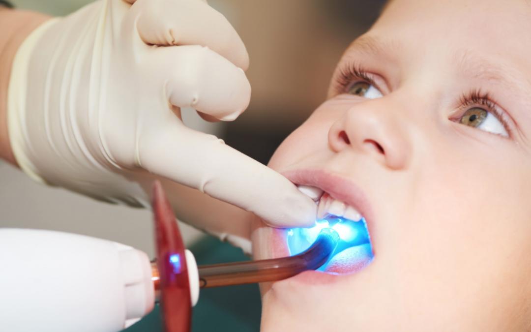Más vale el sellado de los dientes que curar